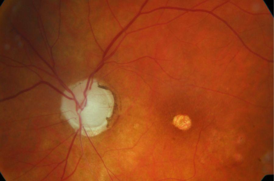 ocne-bolesti-1