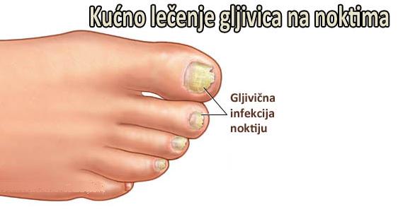 gljivicne-infekcije-noktiju-1