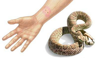 kako-postupiti-kod-ujeda-zmije