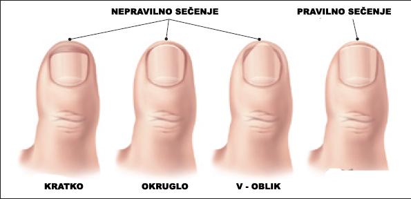 urasli-nokti-1